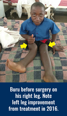 Buru's legs before surgery on his right leg in 2018