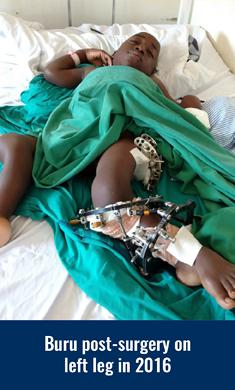 Buru post-surgery on his left leg in 2016