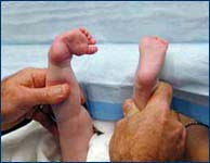 3-month-old baby with clubfoot before treatment back view