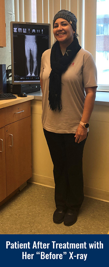 "Smiling patient after treatment for Blount disease at the International Center for Limb Lengthening with straight legs posing by her bowed ""before"" X-ray"