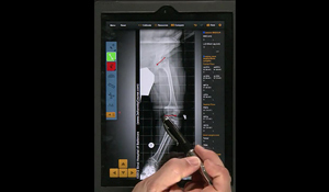 Screenshot of a video tutorial demonstrating how to use the Bone Ninja app for deformity correction
