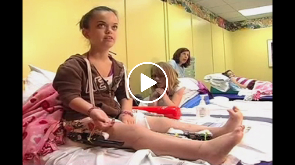 Dwarfism patient with an external fixator on her leg talking about her treatment at the International Center for Limb Lengthening during physical therapy
