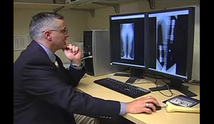 Dr. Shawn Standard examining x-rays of a Dwarfism patient at the International Center for Limb Lengthening
