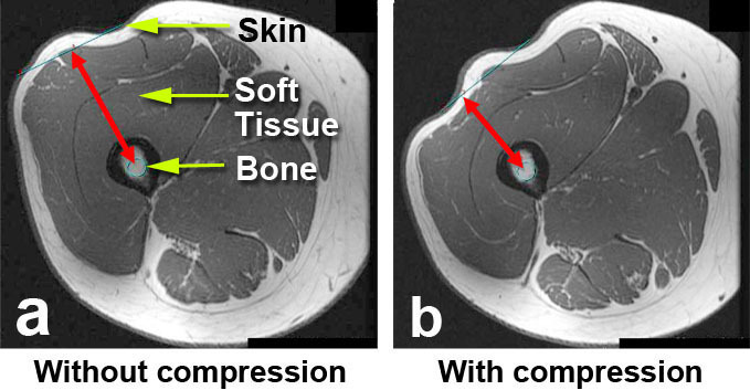 Two MRIs show how compressing the skin/tissue on the thigh helps the ERC get closer to the PRECICE