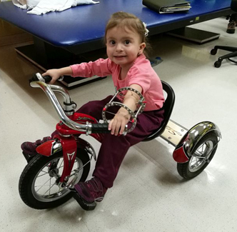 Anicka during treatment Wearing ex fix While on tricycle in physical therapy at the Rubin Institute