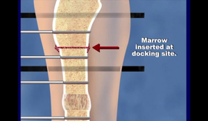 Illustration of how a bone infection is treated at the International Center for Limb Lengthening