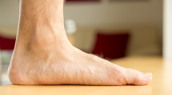 Closeup of man's flatfoot