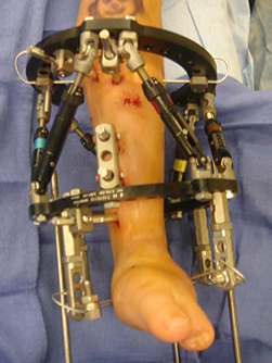 View from the front of a patient's leg with a Taylor Spatial Frame applied