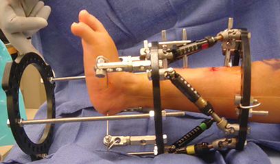 View from the side of a patient's leg with a Taylor Spatial Frame applied