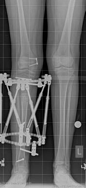 X-ray showing a patient's leg with an external fixator applied, after tibial lengthening treatment for fibular hemimelia