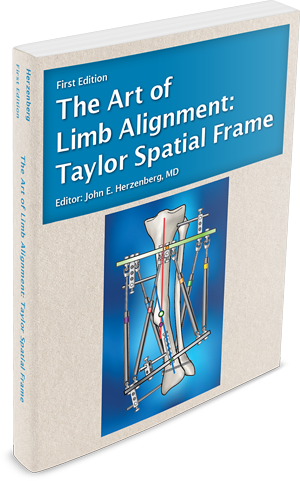 Book cover for The Art of Limb Alignment: Taylor Spatial Frame, edited by Dr. John E. Herzenberg