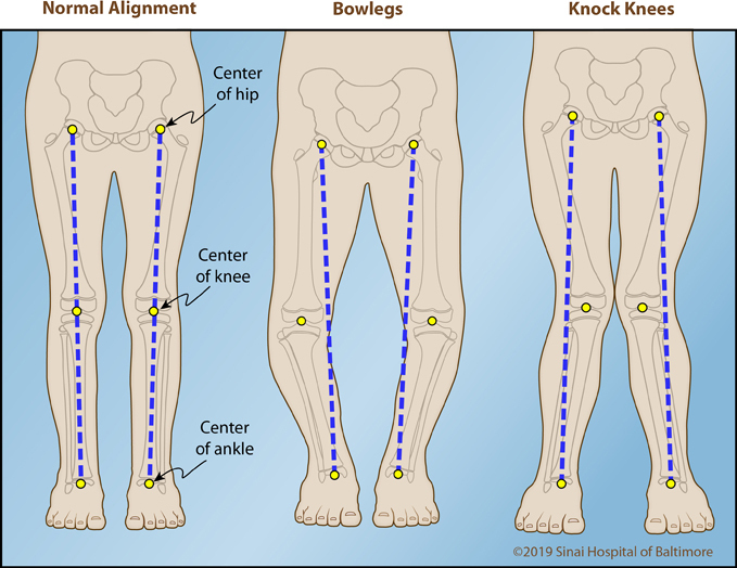 Three color illustrations showing alignment from the hip to the ankle in an AP view. Images show normal alignment, knock knee alignment and bow leg alignment.