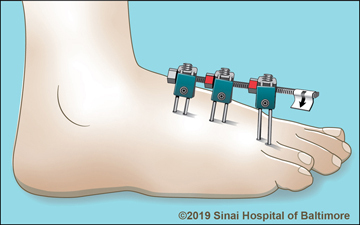 Monolateral external fixator applied to the foot