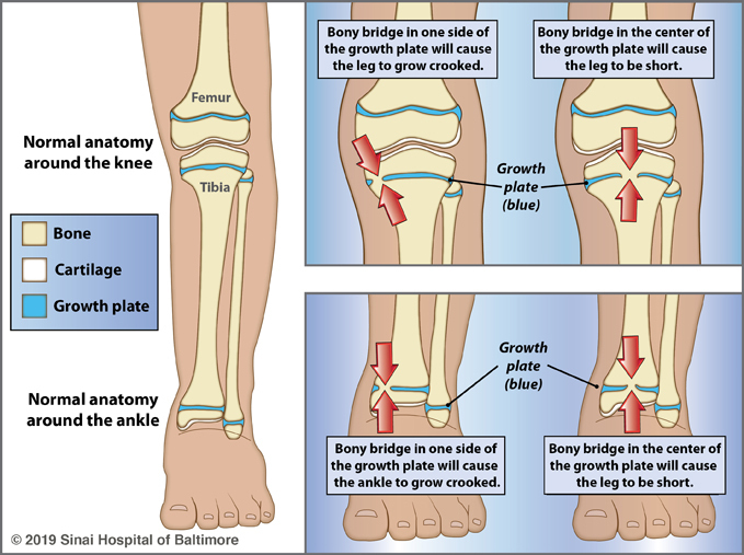 Three illustrations showing the effects of damage to a portion of a growth plate. Panel 1: Normal anatomy around the knee and ankle are shown with a key to the types of bone growth: bone, cartilage and growth plate. Panel 2: Illustrations of the knee showing that damage to the side of the growth plate will cause a bony bridge to form, and the leg will grow crooked. It also shows that damage to the center of the growth plate will cause a bony bridge to form and the leg will be short. Panel 3: Illustrations of the ankle showing that damage to the side of the growth plate will cause a bony bridge to form, and the ankle will grow crooked. It also shows that damage to the center of the growth plate will cause a bony bridge to form, and the leg will be short.