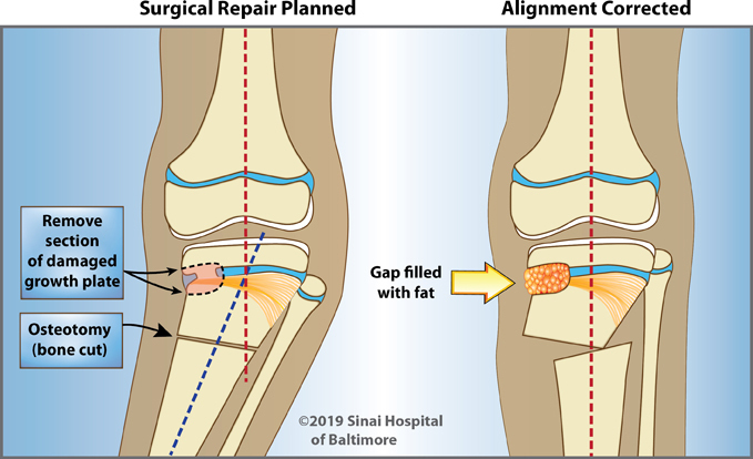 Two illustrations showing first, the malalignment of the knee, and the plan to remove a section of damaged growth plate and following osteotomy (bone cut). Second, bone realigned and growth plate gap filled with fat.