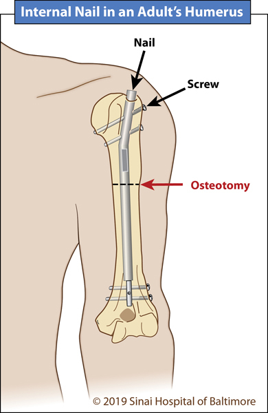 Illustration showing a Precice nail in an adult's humerus (upper arm)