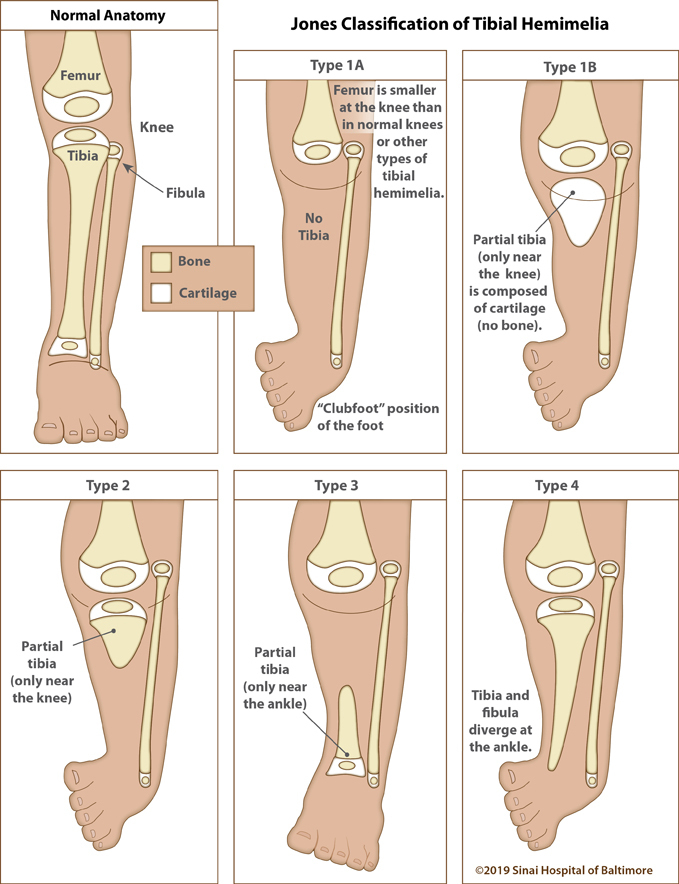 Six color illustrations. The first image shows a normal immature leg from above the knee to the toes and identifies the femur, tibia, fibula and knee. A key identifies the difference between bone and cartilage. Following illustrations depict the five classifications of tibial hemimelia to include: Type 1A, where the femur is smaller at the knee than in normal knees and other types of tibial hemimelias. There is no tibia present and the foot is in a clubfoot position. Type 1B where there is a partial tibia only near the knee and composed of only cartilage. The foot is in a clubfoot position. Type 2 where there is a partial tibia present only near the knee. The foot is in a clubfoot position. Type 3 where there is a partial tibia only near the ankle. Type 4 where the tibia and fibula diverge at the ankle. The foot is in a clubfoot position.