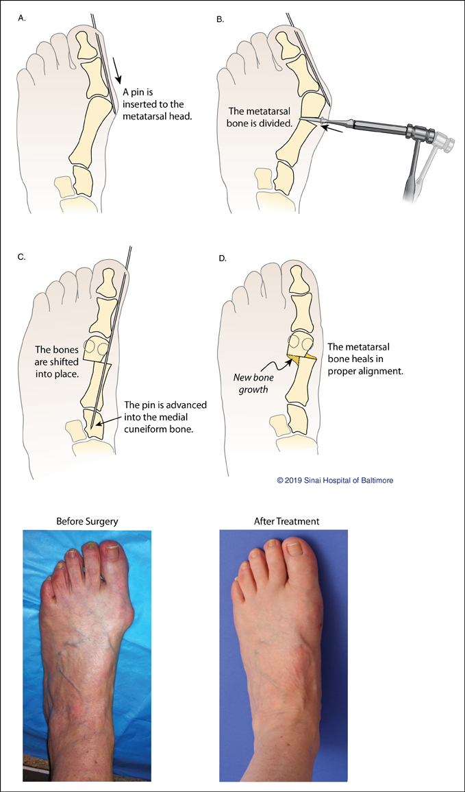 Four illustrations demonstrating the steps taken during minimally invasive bunion surgery and a before surgery picture of a patient's foot with a bunion and a picture of a foot after treatment at the International Center for Limb Lengthening which shows the bunion has been corrected
