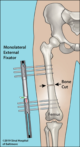 Illustration of monolateral external fixator applied to the femur