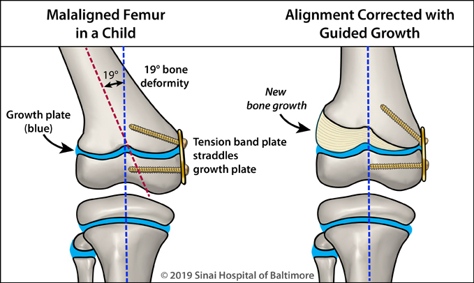 A tension-band plate is used to perform guided growth to correct a deformity in the femur
