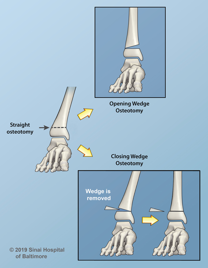 Opening and Closing Wedge Osteotomies