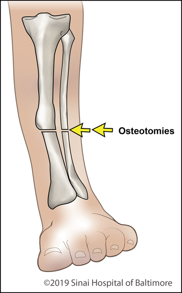 Osteotomy in a deformed tibia