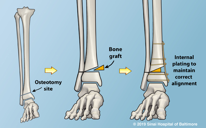 Plate used to maintain correct alignment after osteotomy