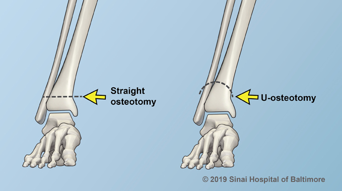 Straight Osteotomy and U-Osteotomy