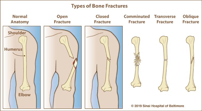 Six color illustrations, each showing a tibia and fibula. The first image shows a normal immature bone and identifies the epiphysis, metaphysis, tibia and growth plate. It is followed by examples of each of the five types of growth plate fractures.