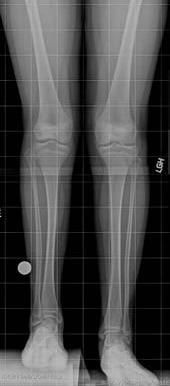 X-ray showing a patient's legs before tibial lengthening treatment for fibular hemimelia