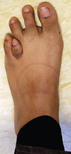 Photo of foot with shortened fourth toe