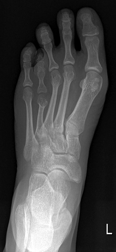 X-ray of foot with shortened fourth toe