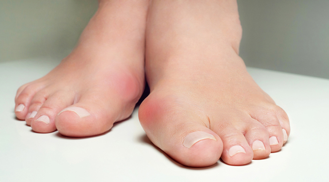 Closeup of a hallux valgus bunion on a foot