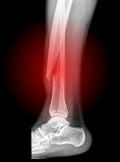 Side view x-ray of a lower leg fracture