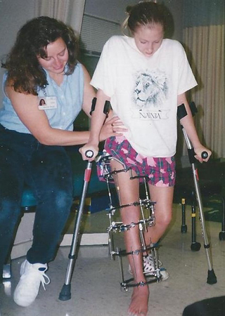 Carly at eleven in above-and below-knee external fixators getting assistance from another woman while walking with crutches