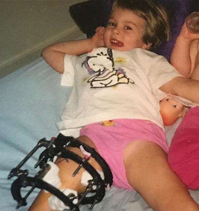 Emily as a very young girl lying back on a bed with an external fixator on her leg