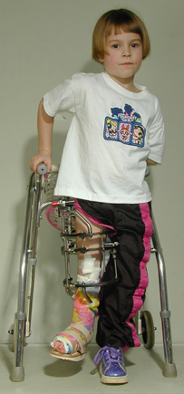 Emily as a very young girl with an external fixator and walker showing her significant limb length discrepancy
