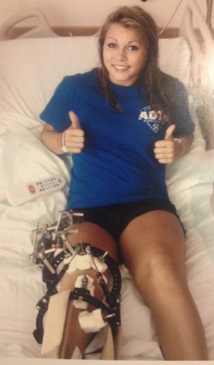 Emily as a young adult giving two thumbs up while in a hospotal bed with an external fixator on her leg