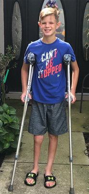 Jeffrey at 11 with internal fixation and crutches