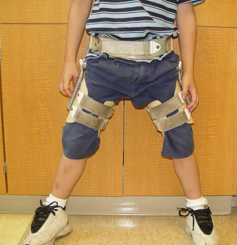 A child wearing a Scottish Rite Brace