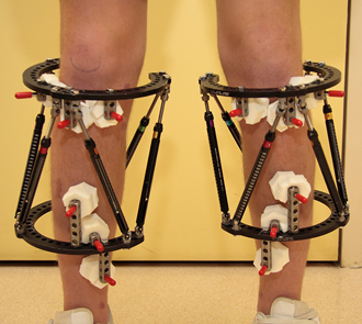Taylor Spatial Frames (TSF) applied to both tibia