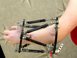 Patient with Taylor Spatial Frame (TSF) applied to the forearm