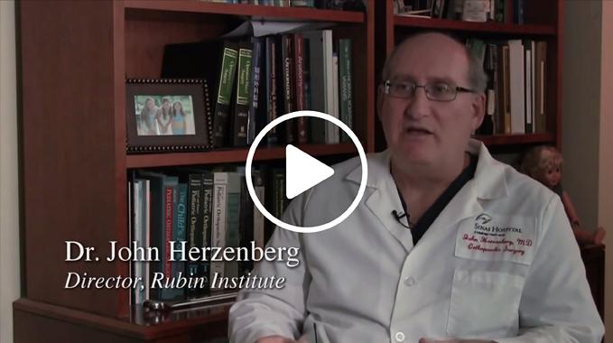 Dr. John Herzenberg Explains Fibular Hemimelia and Congenital Femoral Deficiency Video