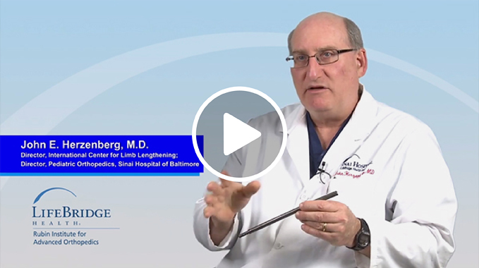 Dr. John Herzenberg Explains Precice Internal Lengthening Nail Video