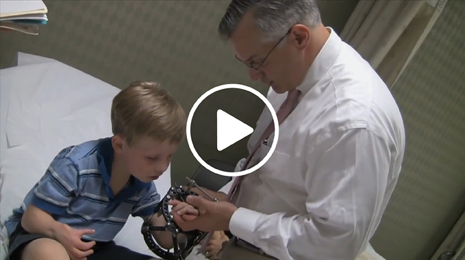 Dr. Standard Patient with Radial Club Hand Shares Story