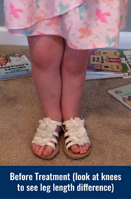Ally's legs before treatment with height of knees showing a leg length discrepancy
