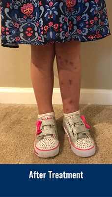 Ally's legs after treatment showing legs are the same length
