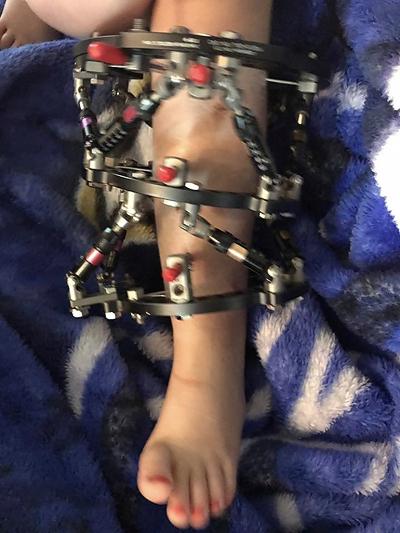 Part of Ally's leg in an external fixator