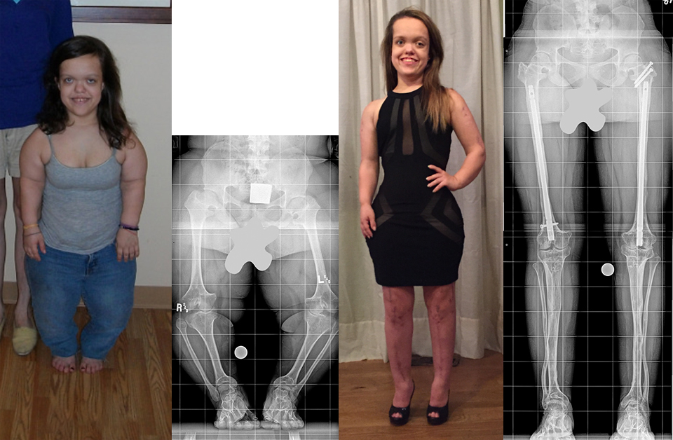 A set of four images: two photos and two x-rays of a female patient with achondroplasia. One picture is labeled 2010 and that picture and the first X-ray from her waist down show her before treatment. A second picture labeled 2015 depicts Chandler after completing treatment where she is significantly taller; the accompanying X-ray from the waist down post-treatment shows her dramatically longer and straighter legs.