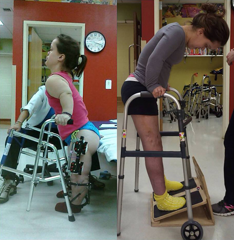 Two side-by-side pictures of Chandler; one at the start of her treatment with a walker and wearing external fixators on her legs in physical therapy, and one showing her significantly taller after lengthening doing a physical therapy exercise while using a walker for balance on an inclined foot board.